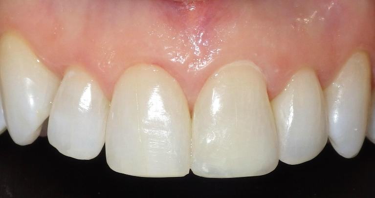 Adding-length-to-front-tooth-to-match-adjacent-tooth-After-Image