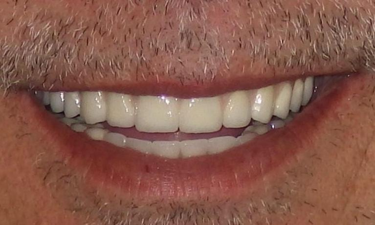 Full-Dental-Implant-Reconstruction-After-Image