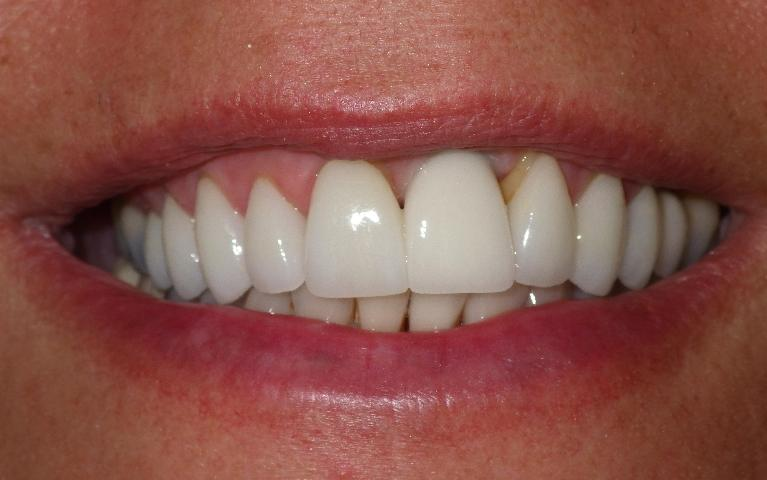 Replacing-a-Missing-Front-Tooth-with-A-Dental-Implant-After-Image