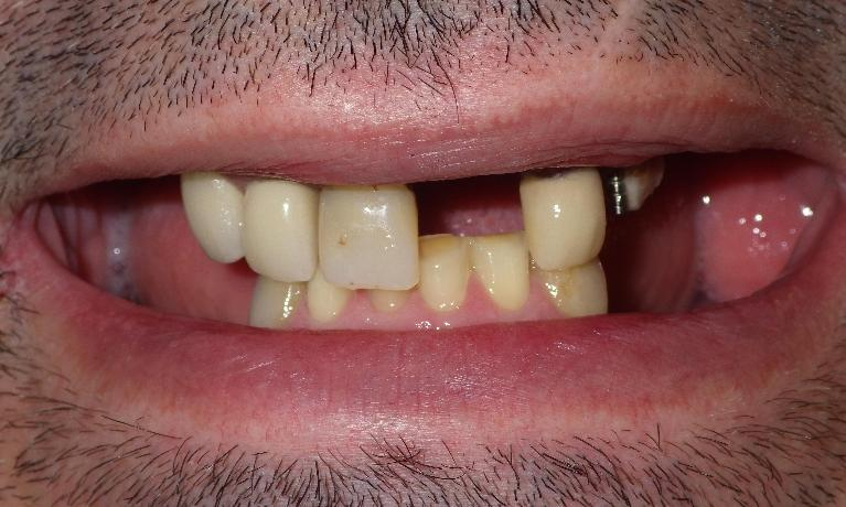 Another-denture-brightens-a-smile-Before-Image