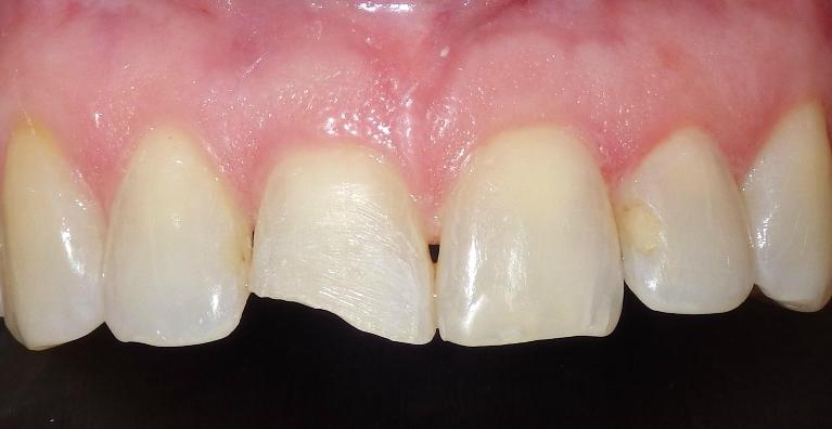Cosmetic-bonding-to-fix-broken-front-tooth-Before-Image