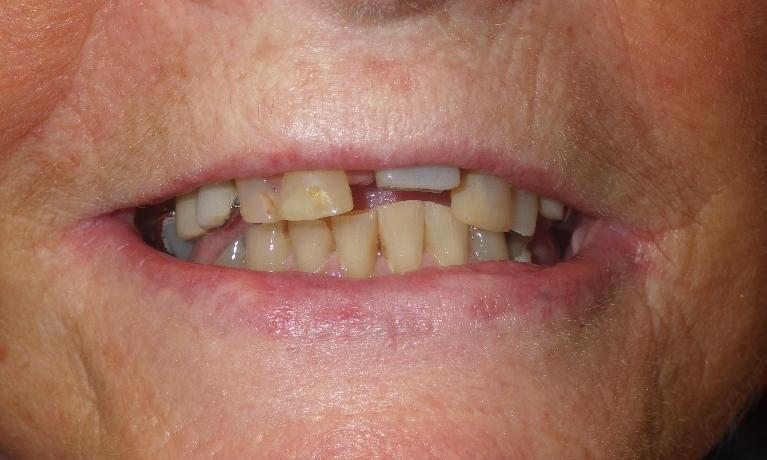 Natural-looking-dentures-Before-Image