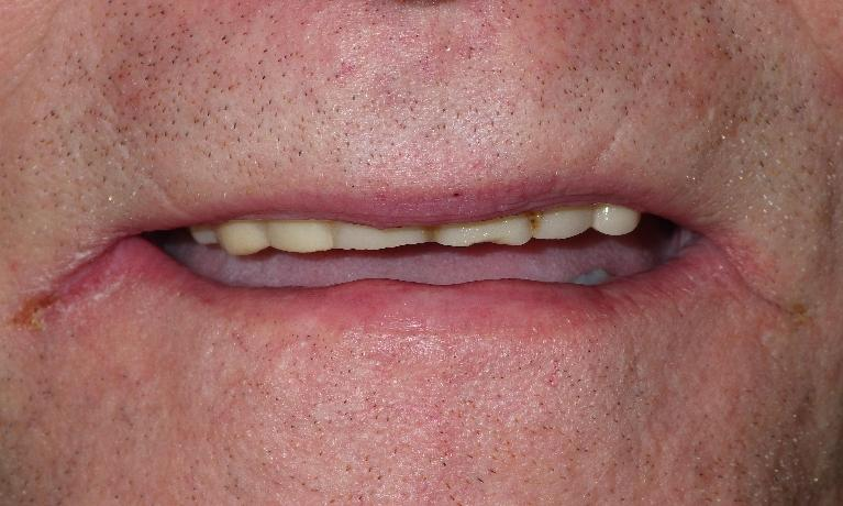 Out-with-the-old-denture-and-in-with-the-new-Before-Image