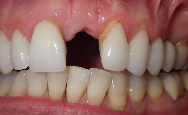 Replacing-a-Missing-Front-Tooth-with-A-Dental-Implant-Before-Image