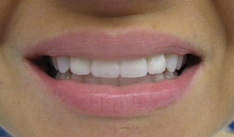 Cosmetic-case-porcelain-crowns-After-Image