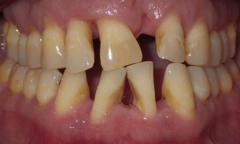 A-partial-denture-saves-a-smile-Before-Image