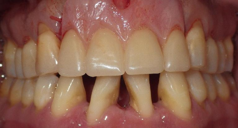 A-partial-denture-saves-a-smile-After-Image