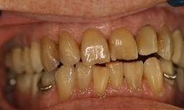 Whitening-and-Veneers-Before-Image