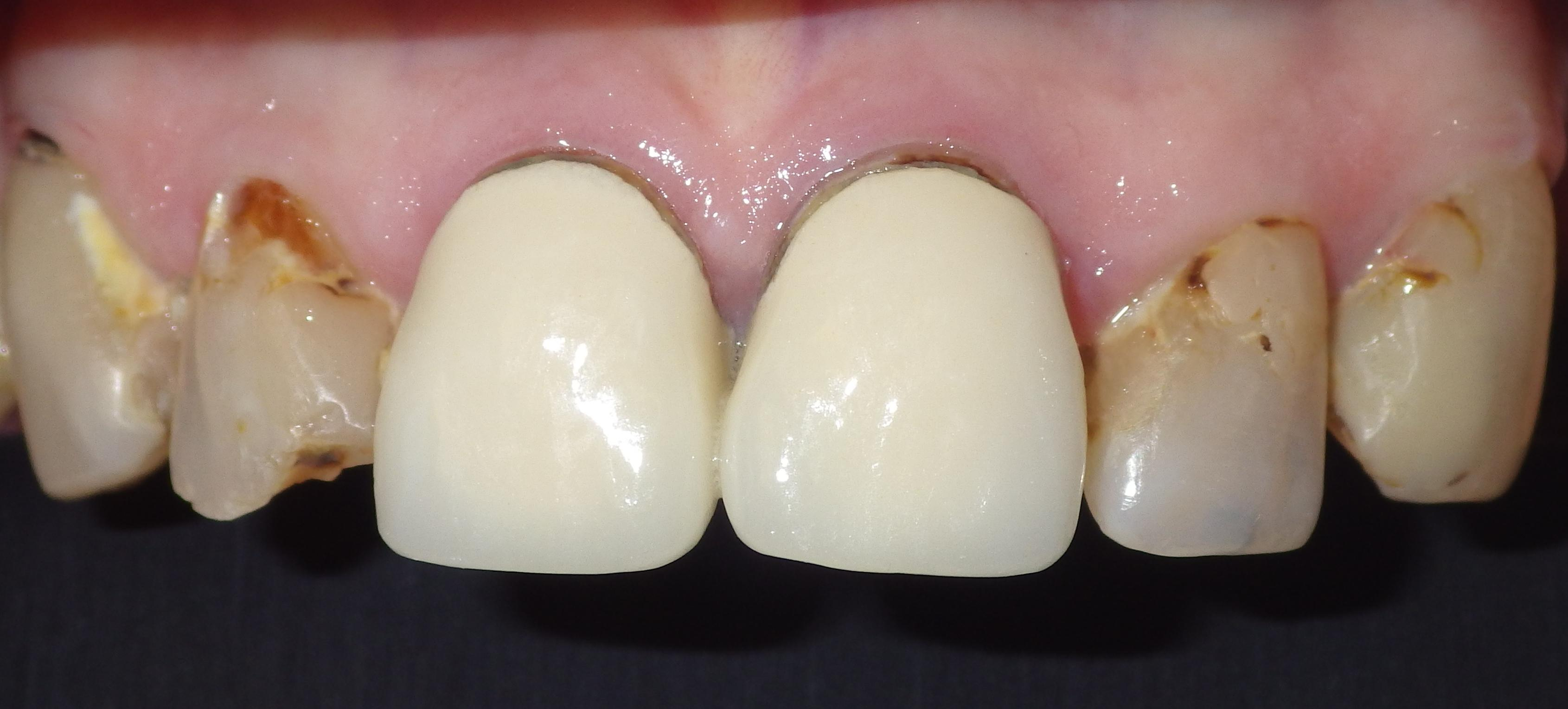 Dental crowns, porcelain crowns, cosmetic dentistry