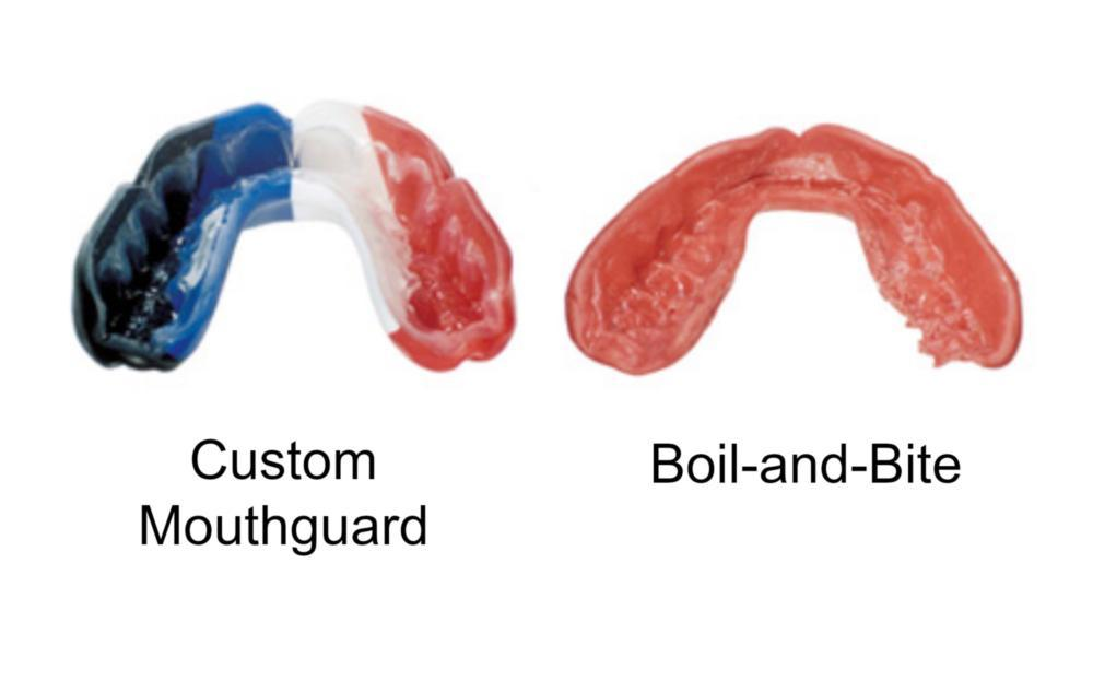 a comparison of 2 different mouth guards | custom mouth guard duxbury