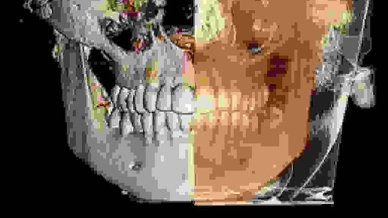 Dental X-ray of jaw | Dentist Duxbury MA