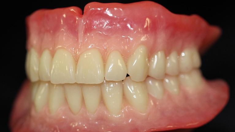 a new set of full dentures infront of a black backdrop | dentures duxbury ma