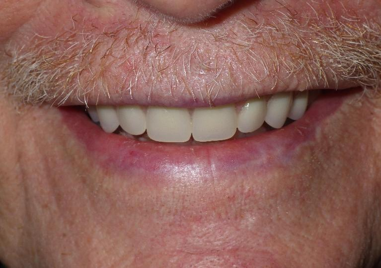Donating a Smile to a Veteran - Dentures