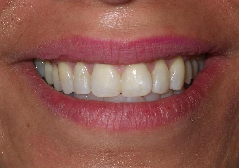a close up of a smile | dental implants duxbury