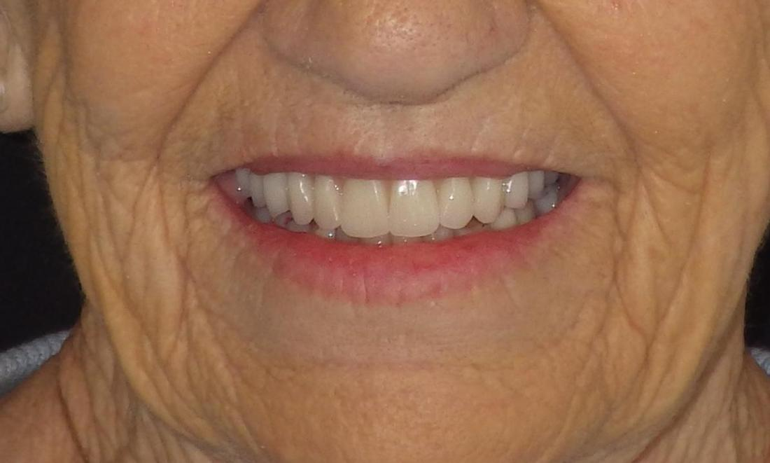 A New Denture for a New Smile