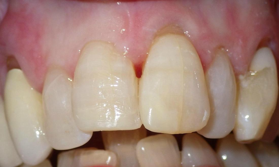 Dental bonding used to fix front teeth