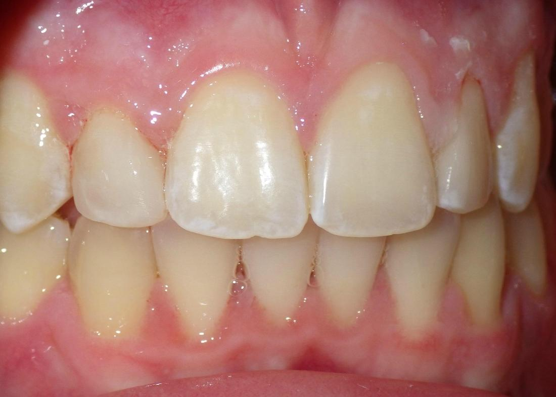 Composite bonding used to correct incisor | Dentist Duxbury MA