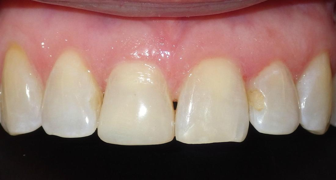 Cosmetic bonding to correct chipped front tooth