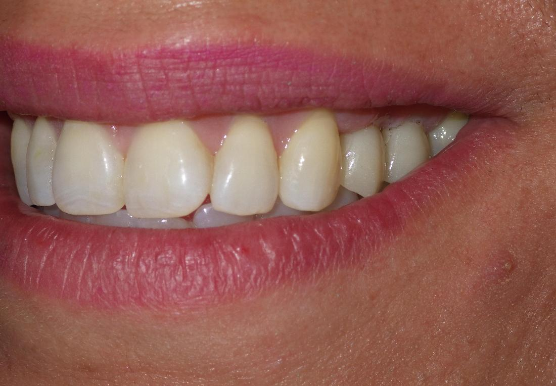 Dental Implants Can Change Your Smile!