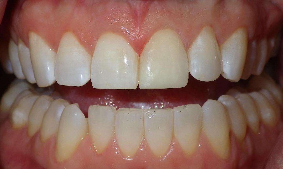 Cosmetic bonding to correct front tooth | Duxbury Dentist