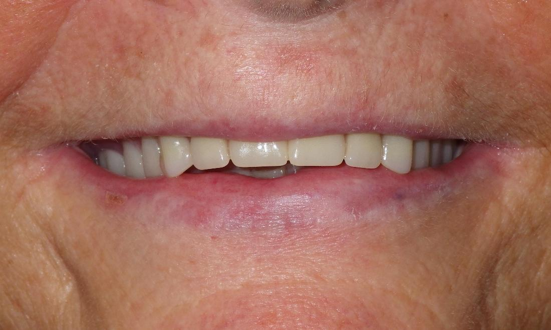 Natural looking dentures pictures