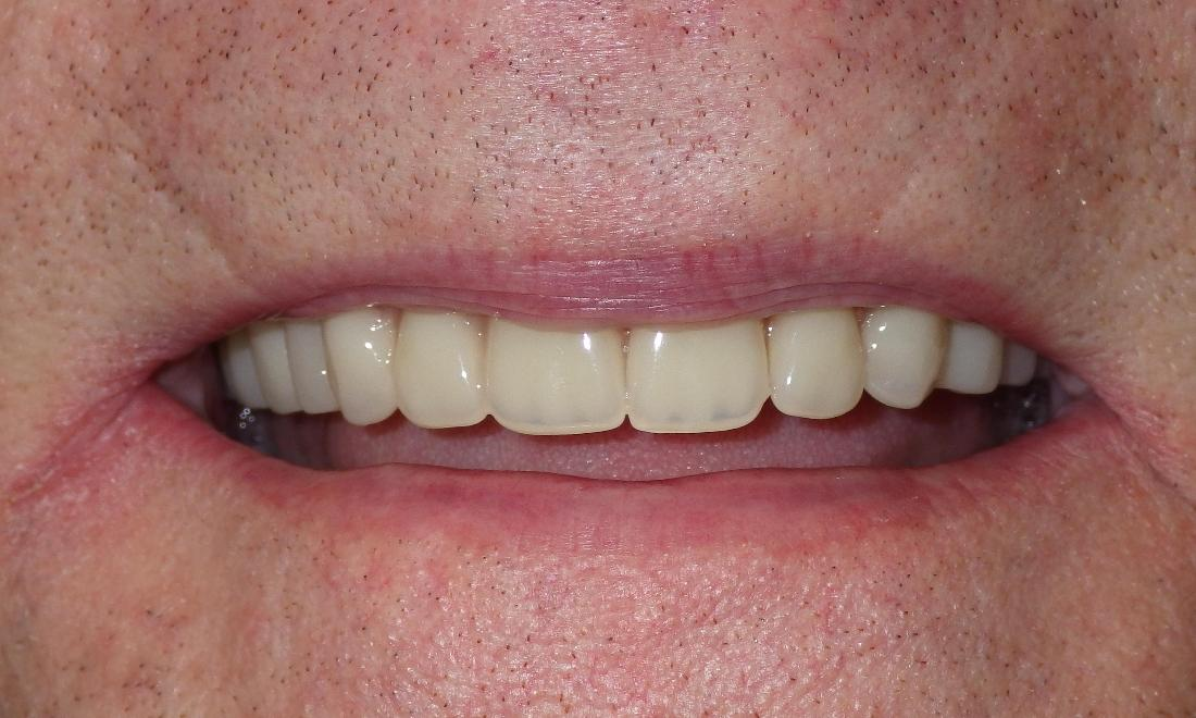 Implant-supported dentures | Dentist Duxbury MA