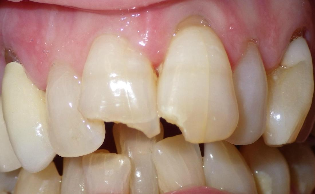 Chipped front teeth | Dentist Duxbury MA
