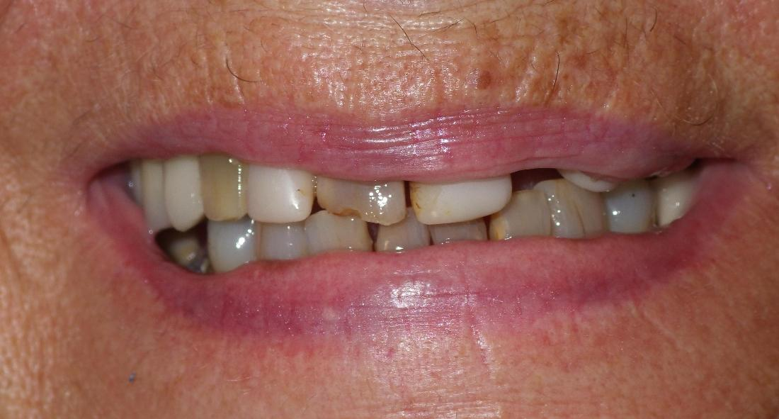Broken and discolored teeth | Dentist Duxbury MA