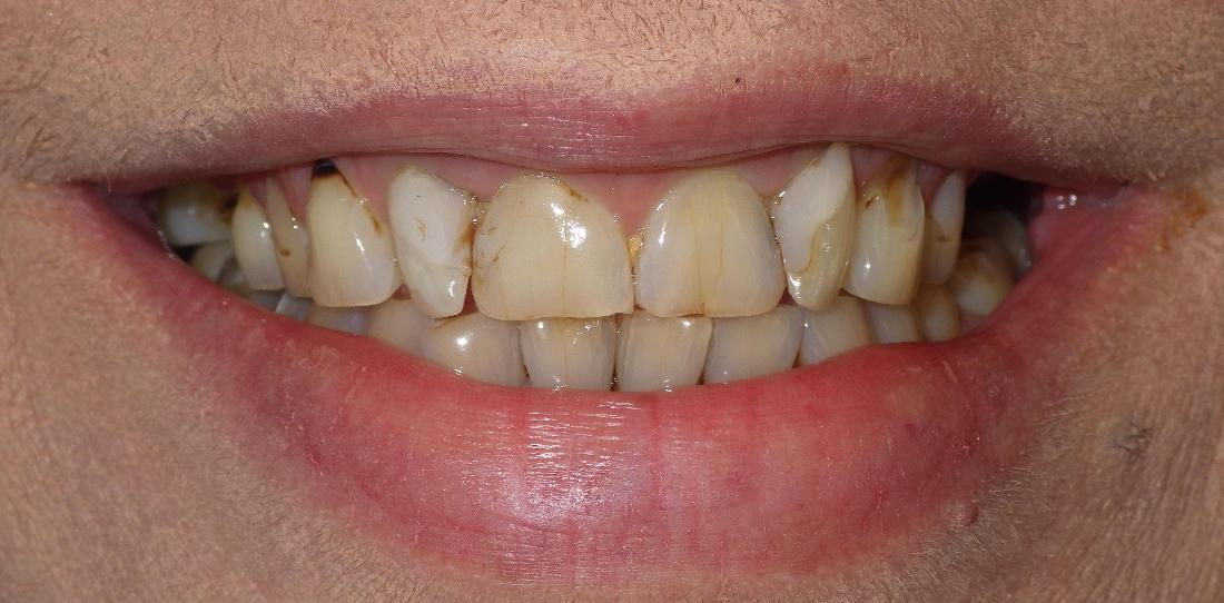 Discolored and cracked teeth | Dentist Duxbury MA