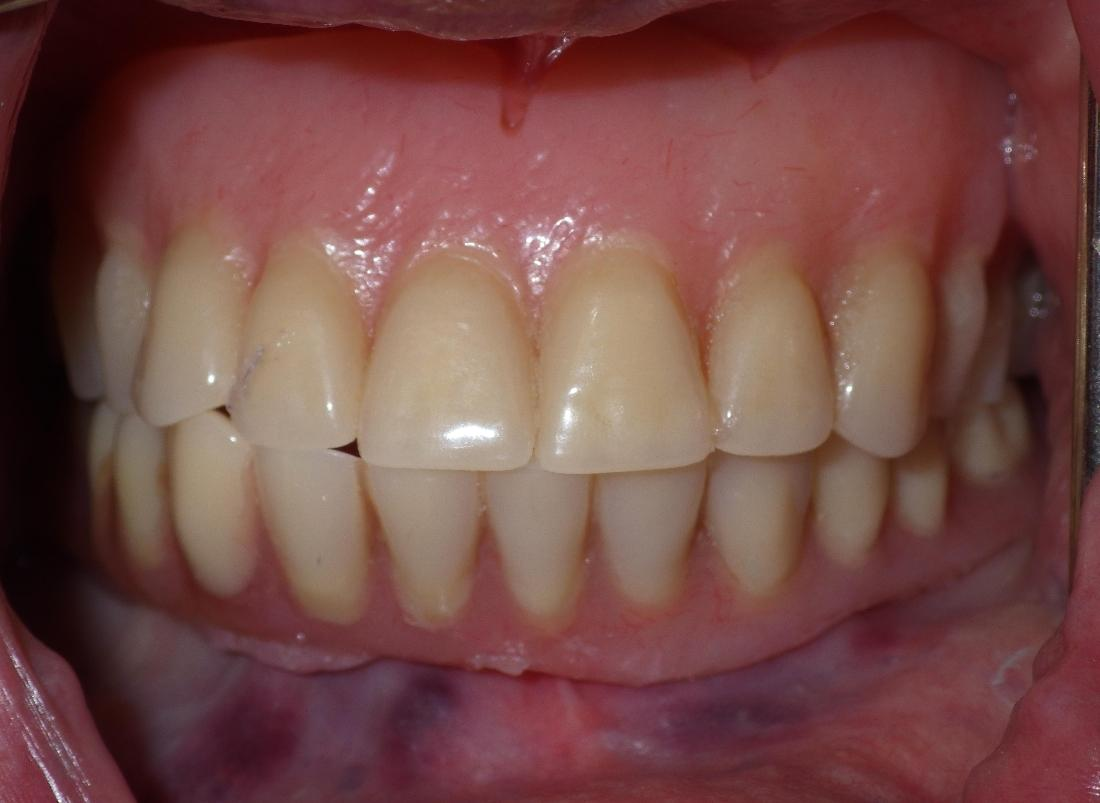 Old and worn dentures | dentist Duxbury MA