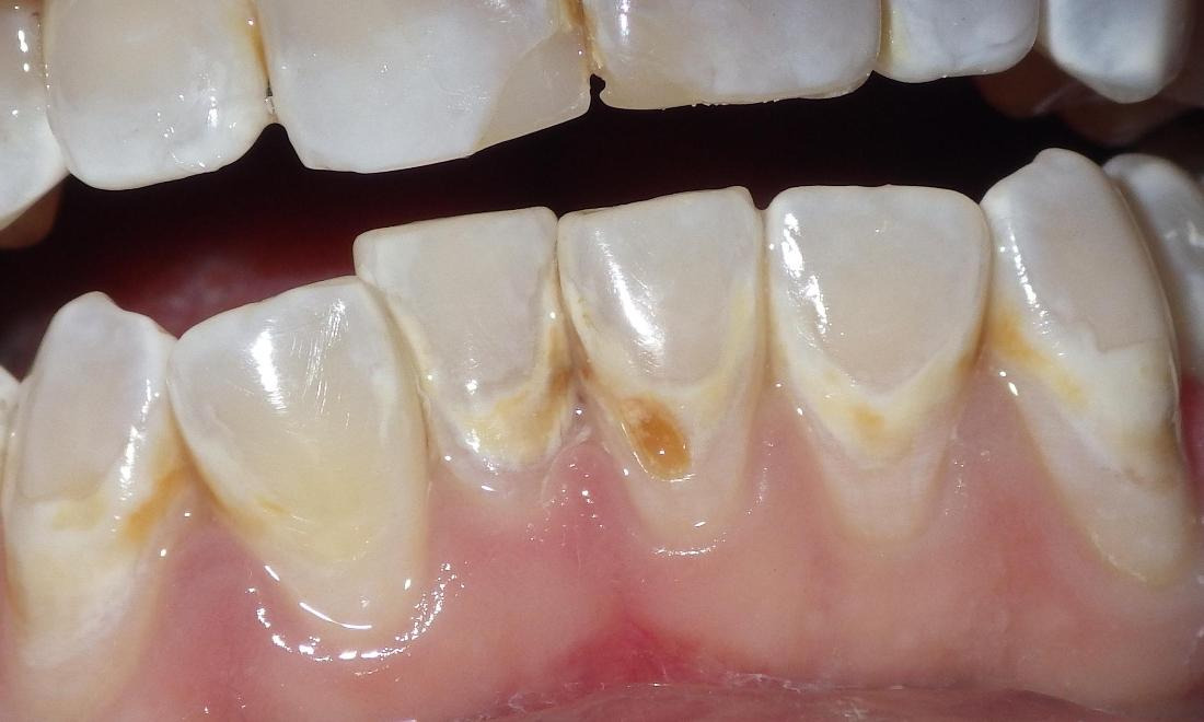 Small cavities near gumline | Dentist Duxbury MA