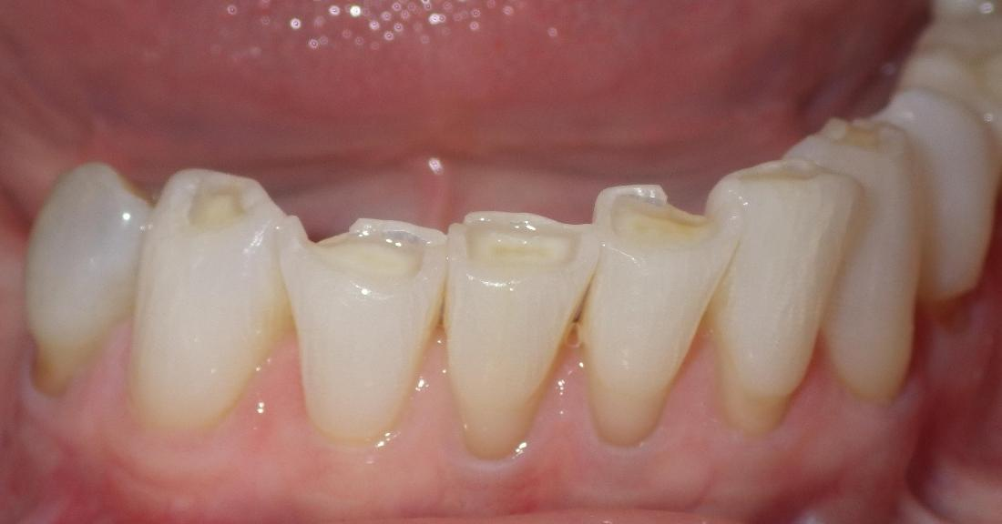 Worn down bottom teeth | dental clinic in Duxbury