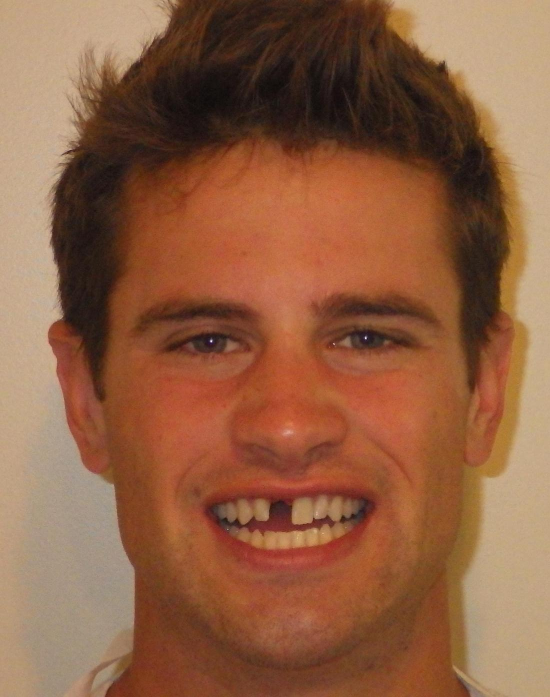 Missing front tooth | Dentist Duxbury MA