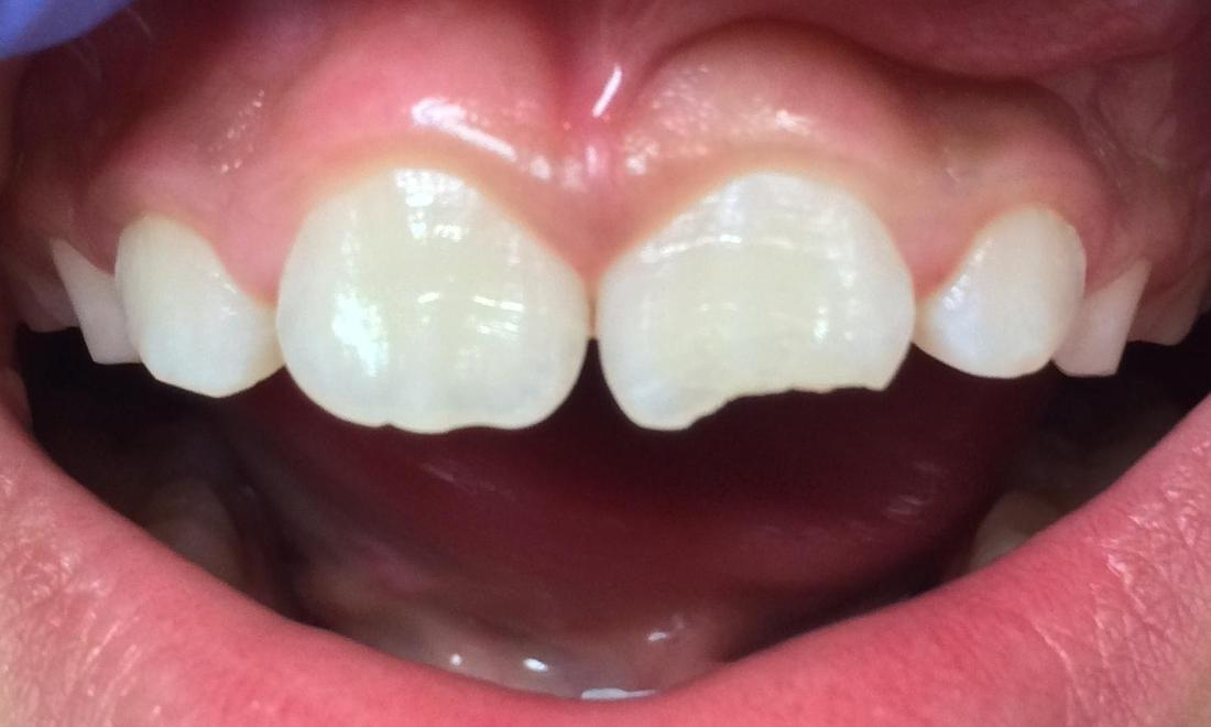 Chipped front tooth | Dentist Duxbury MA