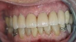 Veneers and whitening used for discolored teeth