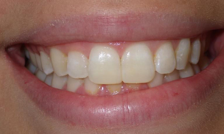 Chipped-teeth-get-a-simple-fix-After-Image