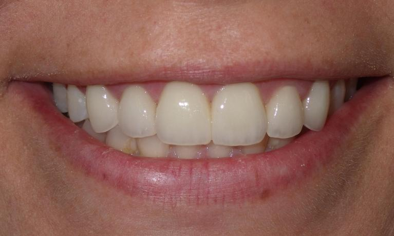 Cosmetic-Dentistry-Can-Change-Your-Smile-After-Image