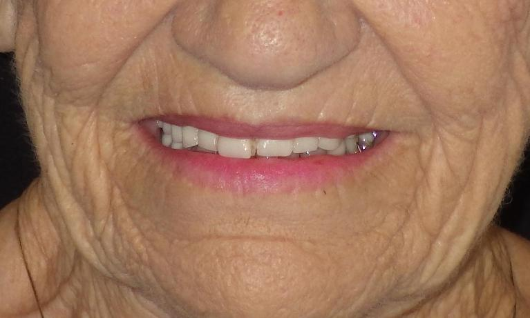 A-New-Denture-for-a-New-Smile-Before-Image