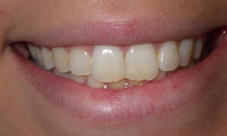 Chipped-teeth-get-a-simple-fix-Before-Image