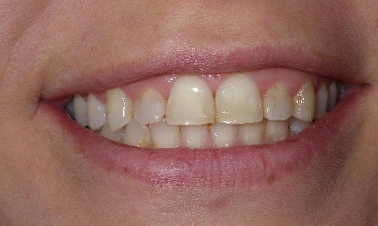 Cosmetic-Dentistry-Can-Change-Your-Smile-Before-Image