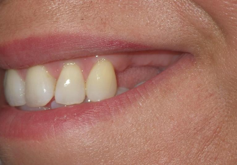 Dental-Implants-Can-Change-Your-Smile-Before-Image