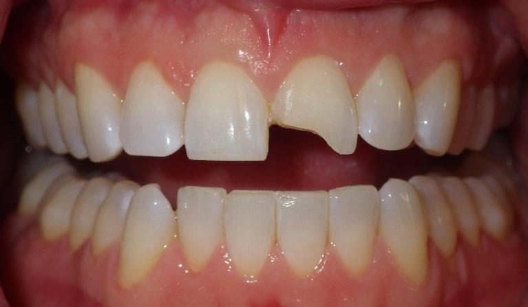 Fixing-an-old-chipped-front-tooth-Cosmetic-Dentistry-Bonding-Before-Image