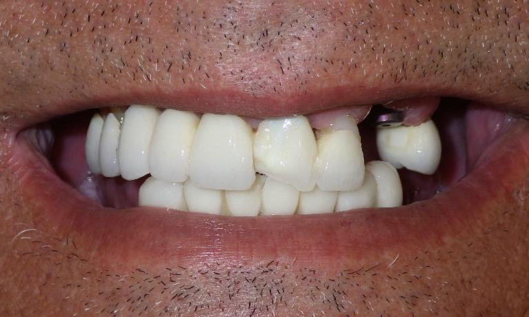 Full-Dental-Implant-Reconstruction-Before-Image