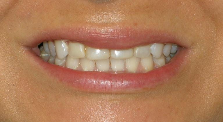 Cosmetic-case-porcelain-crowns-Before-Image